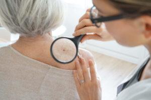potencial dos canabinoides no câncer de pele